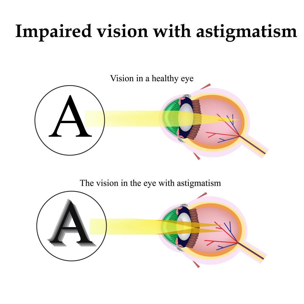 Mt. Pleasant Optometrist Explains Astigmatism