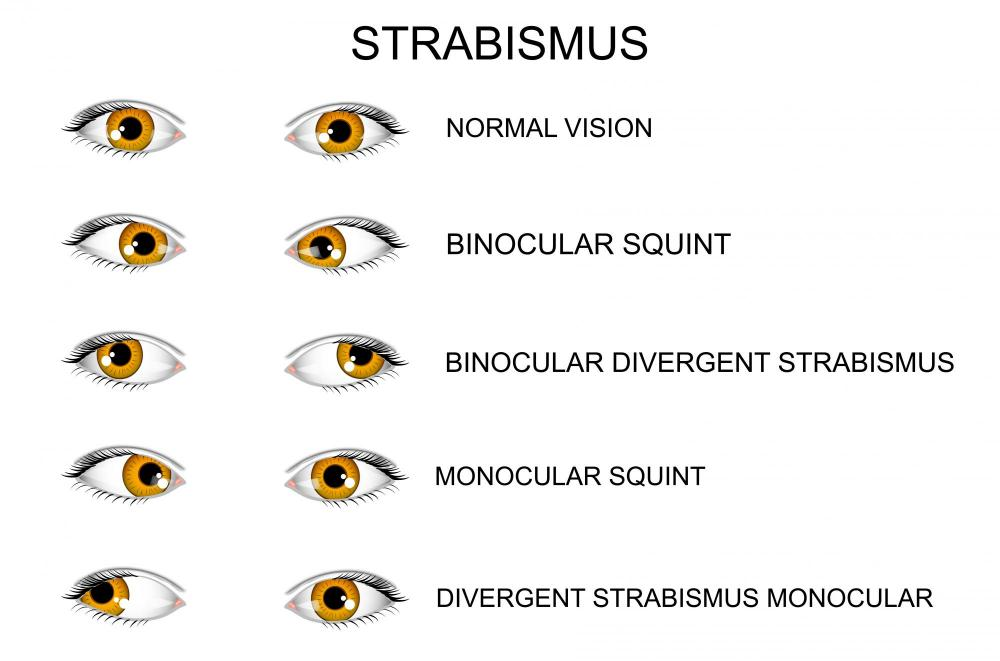 Different types of vision problems